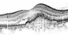 OCT画像(網膜の断層像)