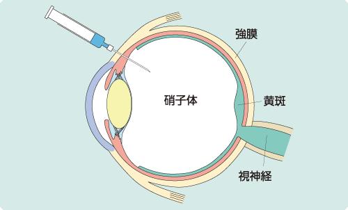 薬剤を眼内に注射することで血管成分の漏れを抑制する治療法です。