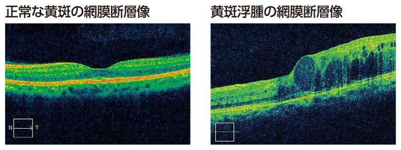 正常な黄斑の網膜断層像と黄斑浮腫の網膜断層像
