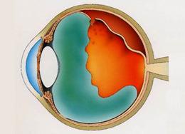 網膜剥離のイメージ(断面図)