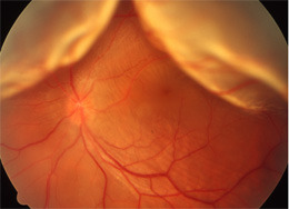 網膜剥離(正面から)